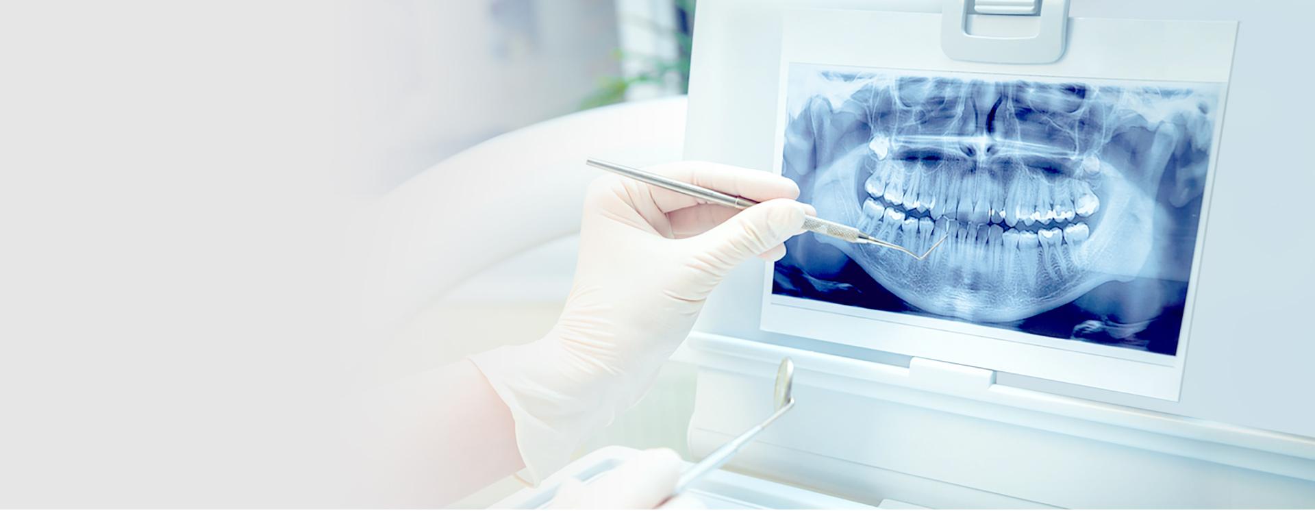 Niềng răng eCligner – Chỉnh nha vô hình, thẩm mỹ hiệu quả