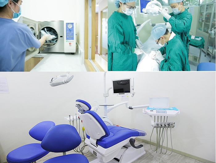 Địa chỉ trồng răng implant nào uy tín nhất -3