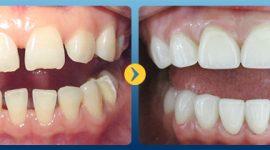 Tư vấn răng sứ – Giải đáp từ A – Z bởi các chuyên gia