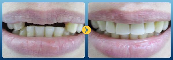 Trồng răng implant ở đâu tốt nhất -7