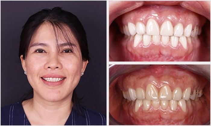 Tẩy trắng răng hiệu quả, an toàn, bền lâu tại Nha Khoa KIM 13