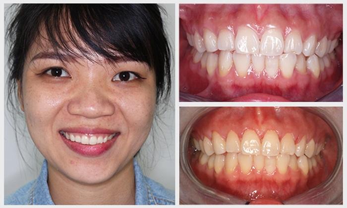 Tẩy trắng răng hiệu quả, an toàn, bền lâu tại Nha Khoa KIM 14