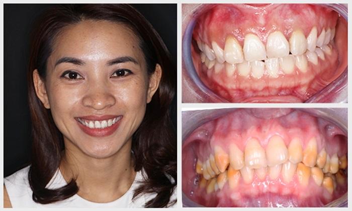 Tẩy răng bị nhiễm kháng sinh có được không? Cách nào hiệu quả? 2