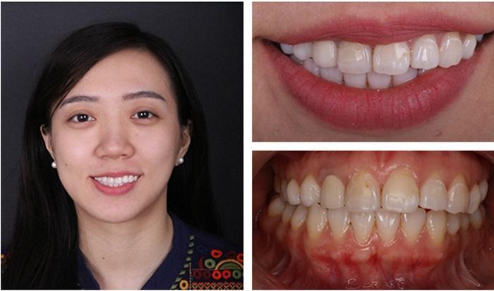 Tẩy trắng răng hiệu quả, an toàn, bền lâu tại Nha Khoa KIM 16