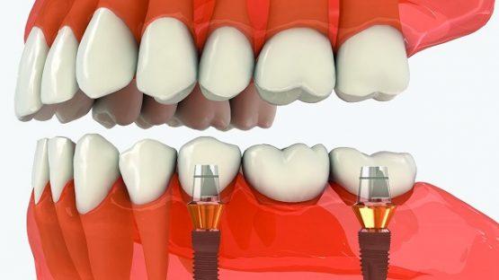 Trồng răng số 7 – Giải pháp thay thế răng tại vị trí quan trọng