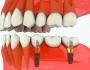Trồng răng số 7 - Giải pháp thay thế răng tại vị trí quan trọng
