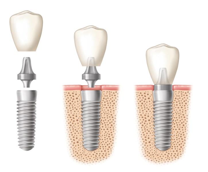 Trồng răng hàm dưới -1