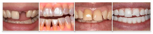 làm răng đều - 3