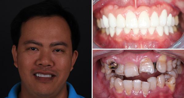 răng giả thẩm mỹ 5