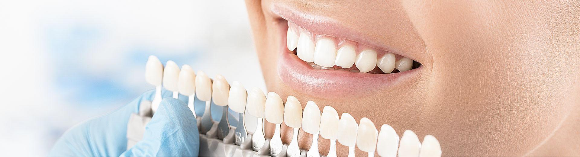 Mặt dán sứ veneer – Phục hình răng đẹp hoàn hảo, bảo tồn răng thật tối đa