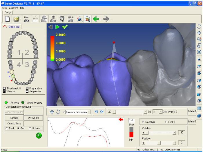 Trồng răng implant -4