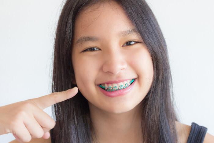 Niềng răng trẻ em an toàn tại Nha Khoa KIM - cha mẹ cần biết