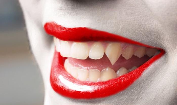 Làm răng giả vampire bằng cách nào nhanh và đẹp hiệu quả? 1