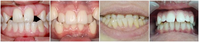 Các trường hợp nên niềng răng mắc cài kim loại