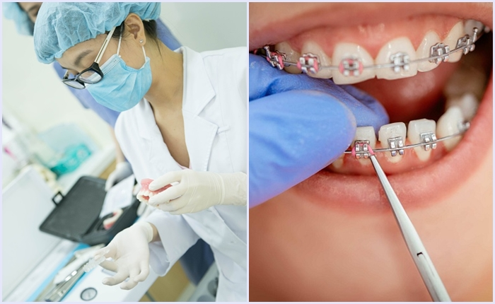 Làm sao dự tính được: Niềng răng thưa giá bao nhiêu tiền khi điều trị? 5