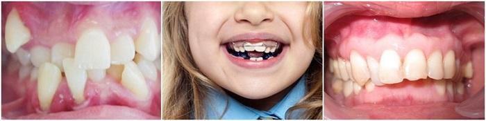 Niềng răng ốc nong rộng - Giải pháp cho hàm răng đều đẹp, không còn hô, móm 2