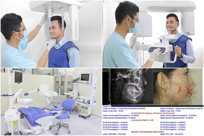 Niềng răng 2 hàm Nhanh và Đảm Bảo Tại Nha Khoa KIM 5