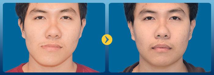 Phẫu thuật chỉnh hàm lệch - Bí quyết cho khuôn mặt hài hòa cân đối 2