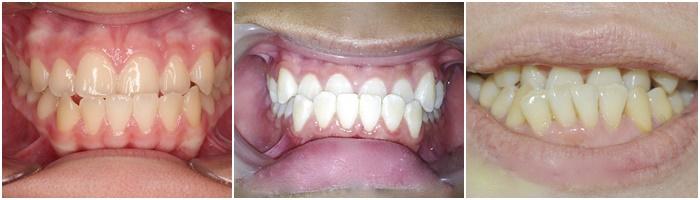 niềng răng móm - 6
