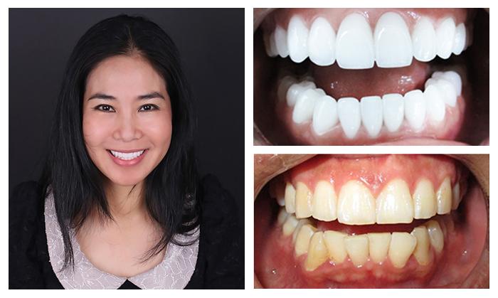 Bọc răng sứ nguyên hàm giá bao nhiêu 4
