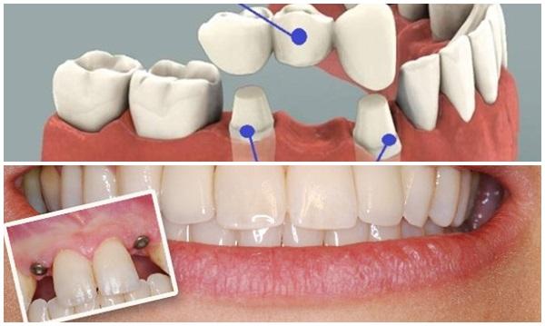 Răng giả gắn chặt có tồn tại suốt đời được không?