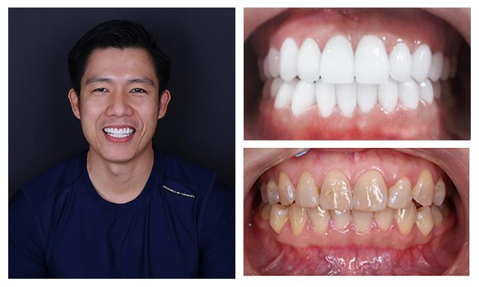 Bọc răng sứ nguyên hàm giá bao nhiêu 3