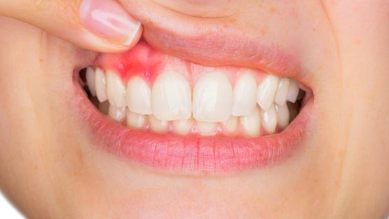 Điều trị viêm nha chu – Giải pháp giúp bảo vệ sức khỏe răng hàm hiệu quả
