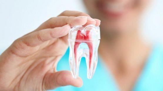 Điều trị tủy răng an toàn bằng công nghệ vi phẫu mới tân tiến