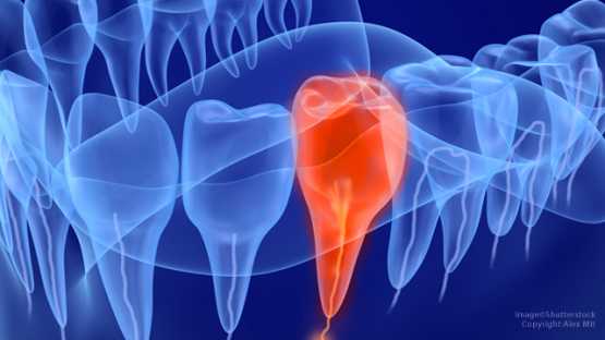 Điều trị tủy răng – Giải pháp bảo tồn răng hiệu quả tối ưu