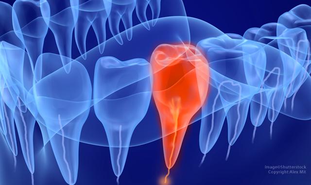 điều trị tủy răng 3