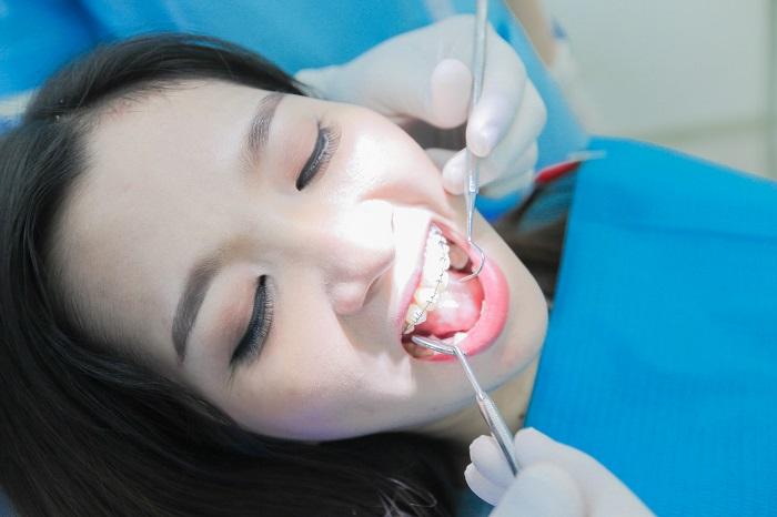 Tư vấn niềng răng - Thông tin giải đáp từ chuyên gia Nha Khoa KIM 9