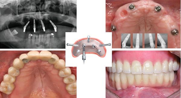 Trồng implant toàn hàm -1