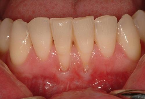 Tụt nướu làm tăng nguy cơ tổn thương răng, dẫn đến mất răng