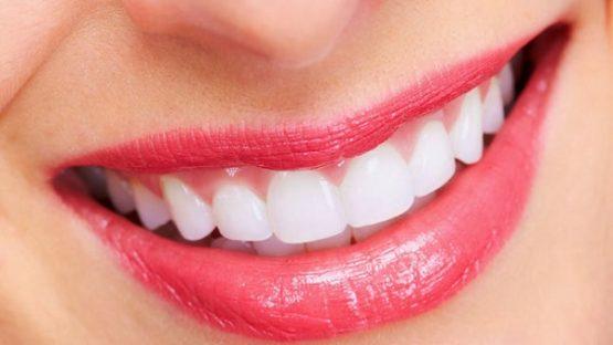 Răng giả thẩm mỹ mang đến cho bạn hàm răng đều đẹp