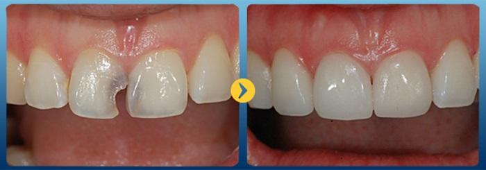 bọc răng sứ cho răng bị mẻ 4