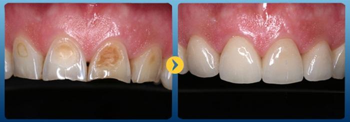Răng xấu làm sao khắc phục hiệu quả và an toàn nhất? 3