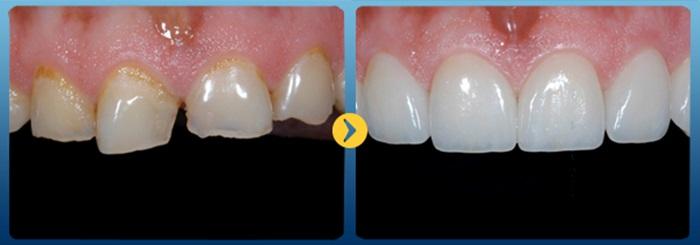 Răng xấu làm sao khắc phục hiệu quả và an toàn nhất? 2