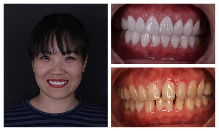 Kết quả bọc răng sứ - răng bị xỉn màu - Nha Khoa KIM