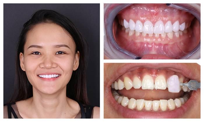 Hình ảnh khách hàng trước và sau khi điều trị tại Nha Khoa KIM