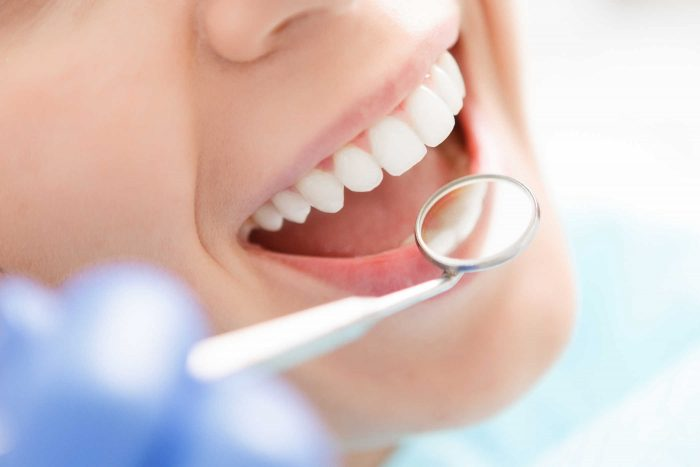 Bọc răng sứ cho răng hô giá bao nhiêu tiền? Chi phí tính thế nào? 3