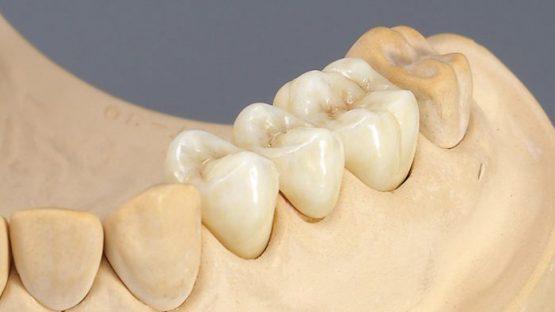 Trồng răng sứ Titan giá bao nhiêu tiền là mức giá CHUẨN?