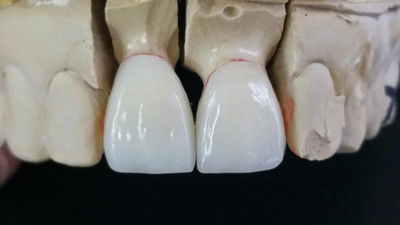 Bọc răng sứ Emax - Giải pháp xóa khuyết điểm răng xấu hiệu quả 1