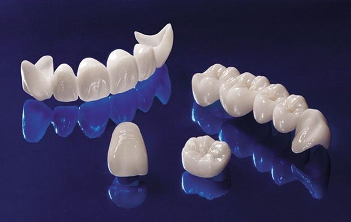 """Phải """"đầu tư"""" bao nhiêu tiền để có hàm răng bọc sứ đẹp hoàn hảo? 4"""