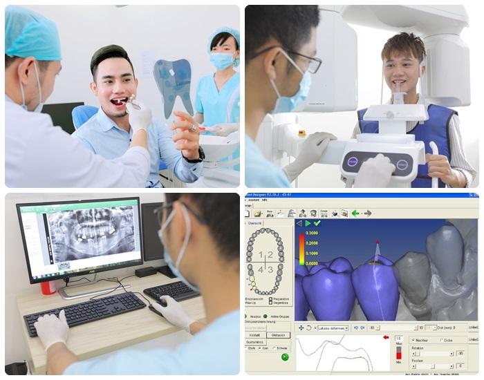 Trồng răng giả có đau không, có nguy hiểm gì không? 4