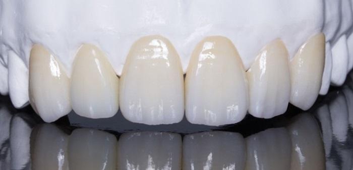 """Phải """"đầu tư"""" bao nhiêu tiền để có hàm răng bọc sứ đẹp hoàn hảo? 2"""