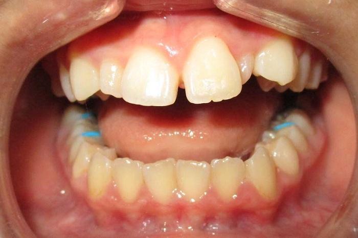 Bọc răng sứ nguyên hàm giá bao nhiêu 2