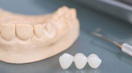 Bọc răng sứ nguyên hàm giá bao nhiêu tiền tại Nha khoa KIM