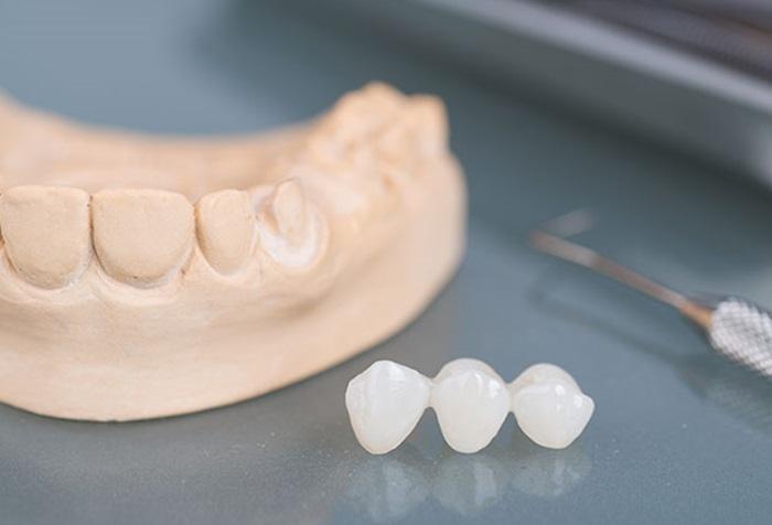 Phương pháp trồng răng số 6 đạt hiệu quả và an toàn nhất 1