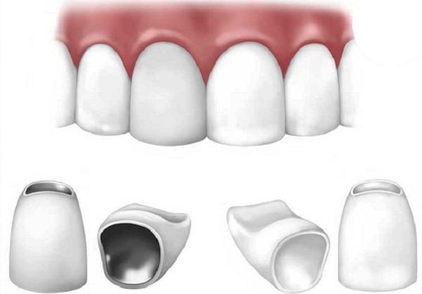 làm răng thẩm mỹ - 3