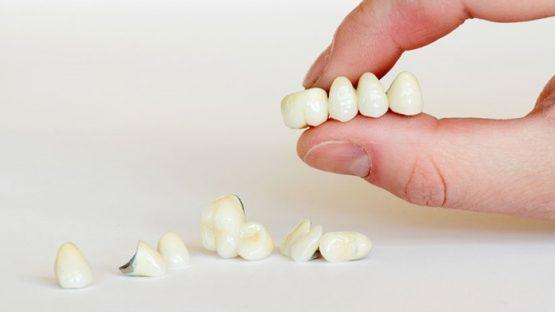 Trồng răng có đau không với phương pháp làm cầu răng sứ?